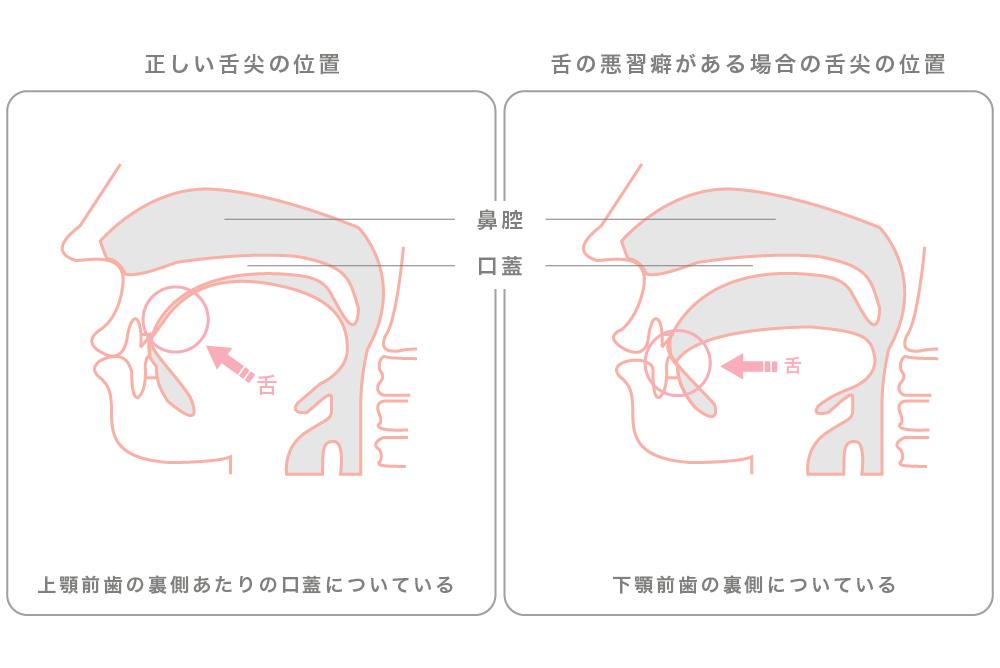 舌トレーニング